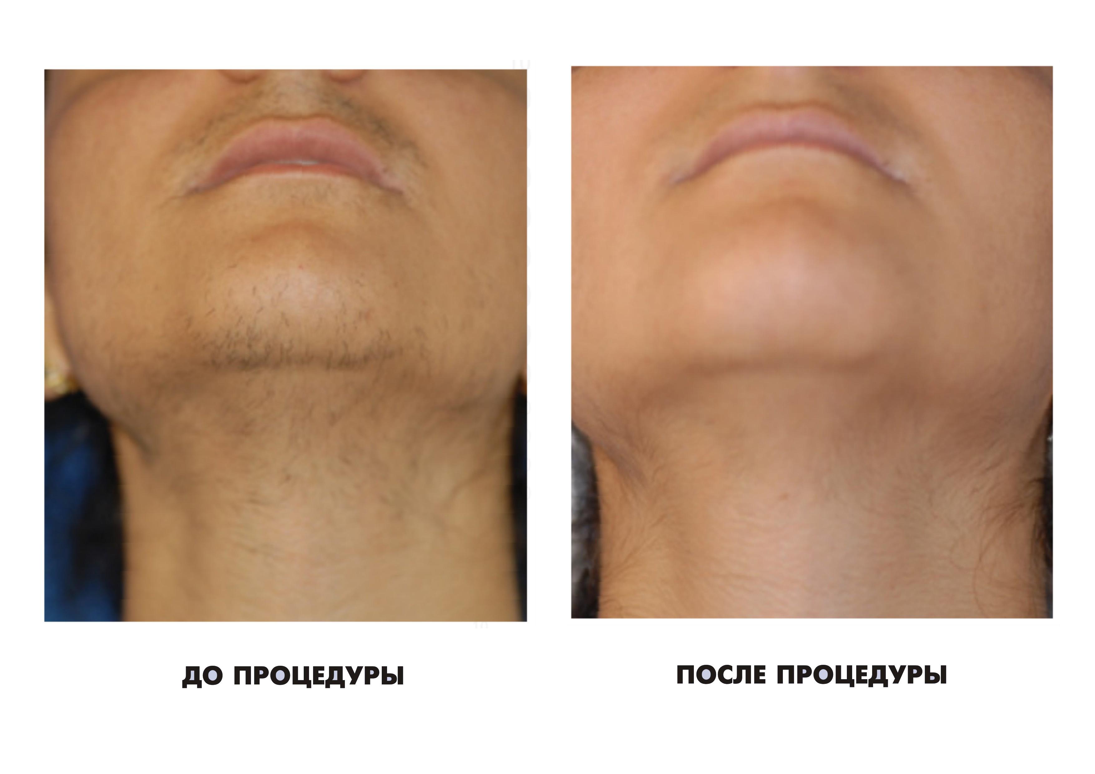 депиляция волос кремом отзывы