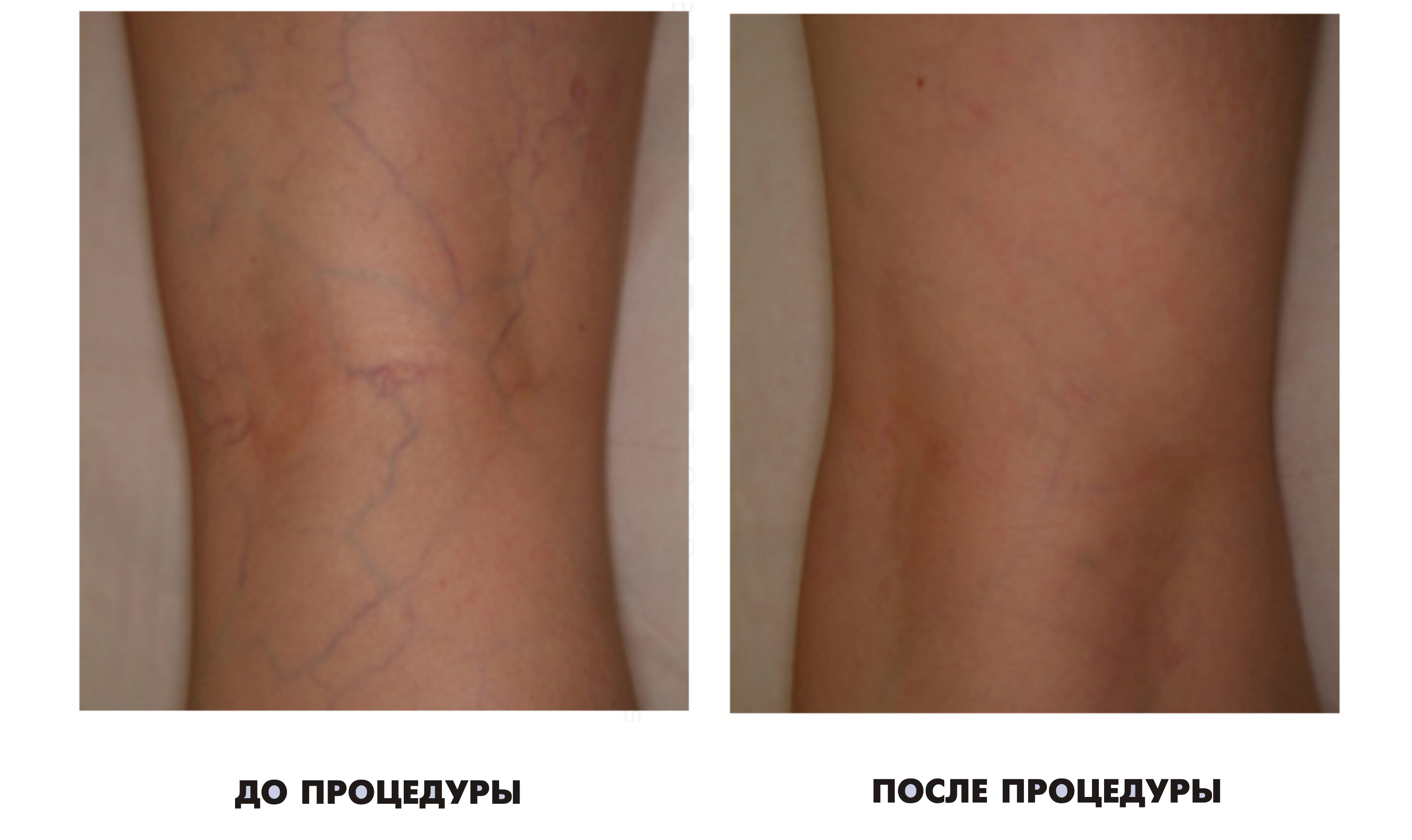 Кровотечения из венозного узла при варикозном расширении вен нижних конечностей